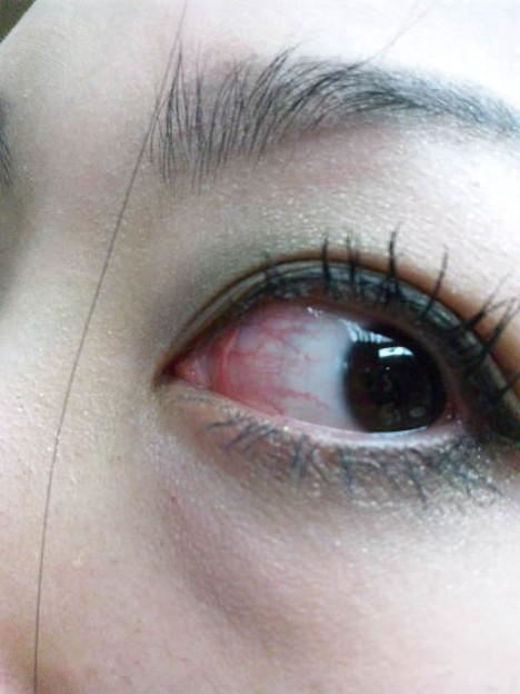 この世に目の赤い鳥って居ますか - 日本で見られる …